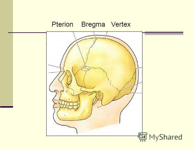 Pterion Bregma Vertex