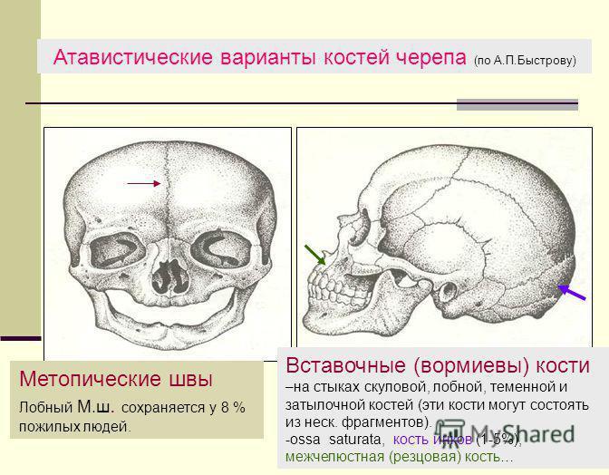 Атавистические варианты костей черепа (по А.П.Быстрову) Метопические швы Лобный М.ш. сохраняется у 8 % пожилых людей. Вставочные (вормиевы) кости –на стыках скуловой, лобной, теменной и затылочной костей (эти кости могут состоять из неск. фрагментов)