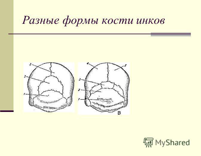 Разные формы кости инков