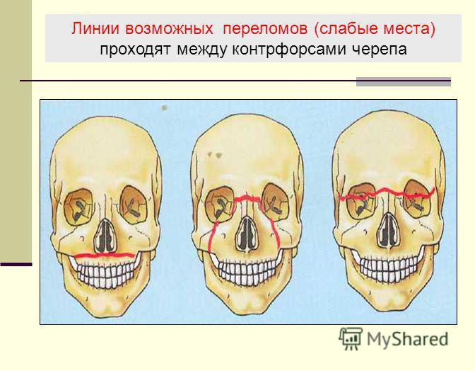 Линии возможных переломов (слабые места) проходят между контрфорсами черепа