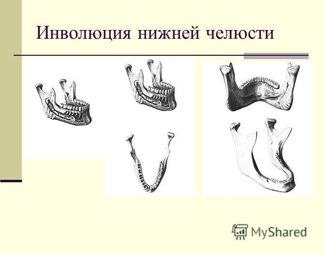 Инволюция нижней челюсти