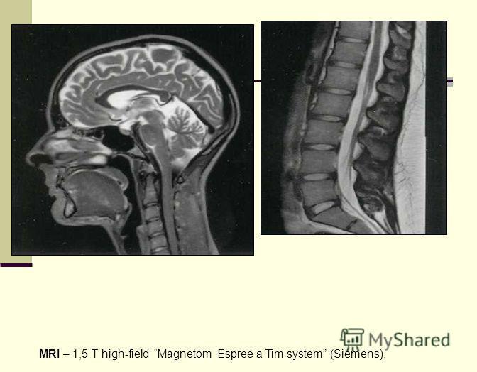 MRI – 1,5 T high-field Magnetom Espree a Tim system (Siemens).