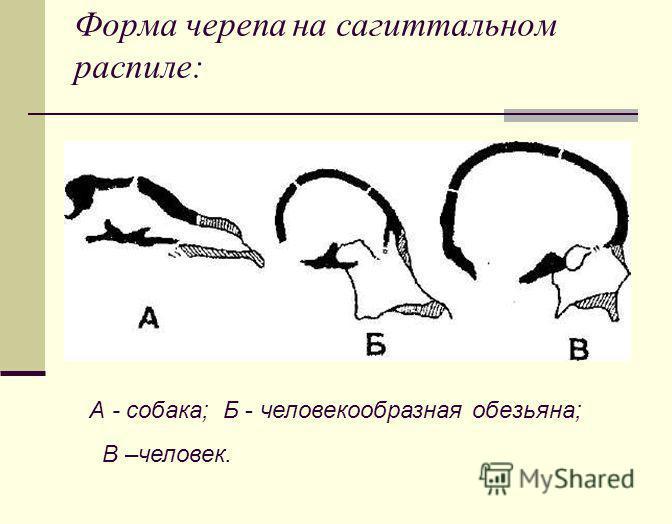 Форма черепа на сагиттальном распиле: А - собака; Б - человекообразная обезьяна; В –человек.
