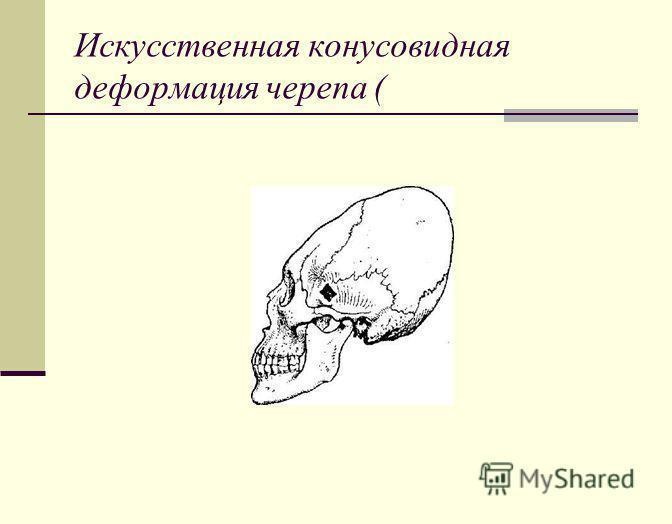 Искусственная конусовидная деформация черепа (
