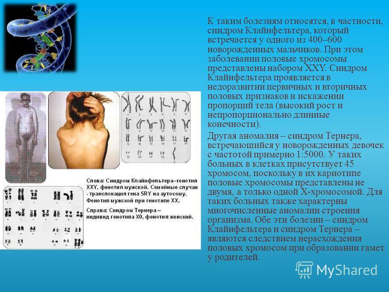 спичками синдром клайнфельтера симптомы признаки календарь