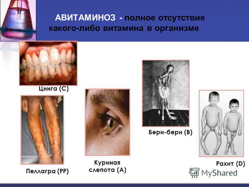 АВИТАМИНОЗ - полное отсутствие какого-либо витамина в организме Цинга (С) Рахит (D) Бери-бери (В) Куриная слепота (А) Пеллагра (РР)