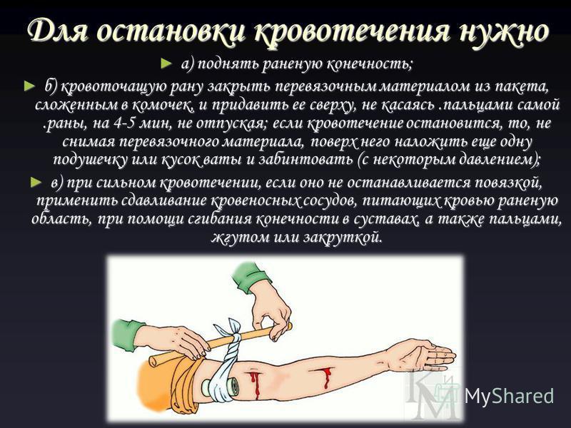 Для остановки кровотечения нужно а) поднять раненую конечность; а) поднять раненую конечность; б) кровоточащую рану закрыть перевязочным материалом из пакета, сложенным в комочек, и придавить ее сверху, не касаясь.пальцами самой.раны, на 4-5 мин, не