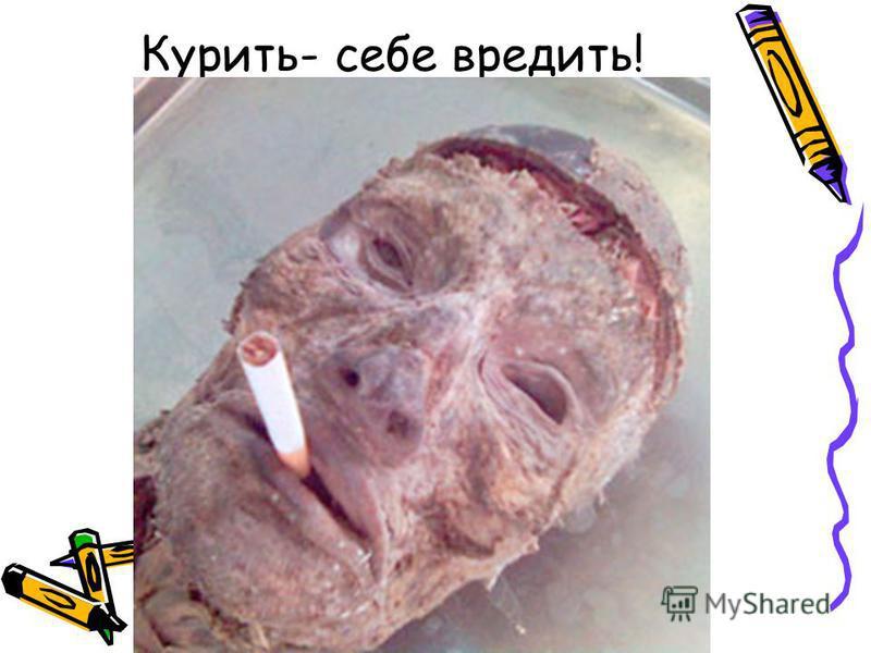 Курить- себе вредить!