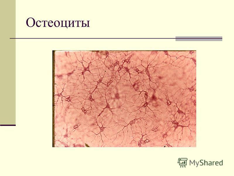 Остеоциты