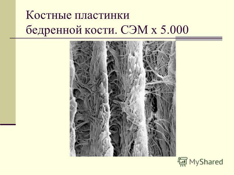 Костные пластинки бедренной кости. СЭМ х 5.000