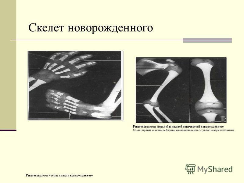 Рентгенограммы верхней и нижней конечностей новорожденного Слева: верхняя конечность. Справа: нижняя конечность. Стрелки: центры окостенения Рентгенограмма стопы и кисти новорожденного Скелет новорожденного