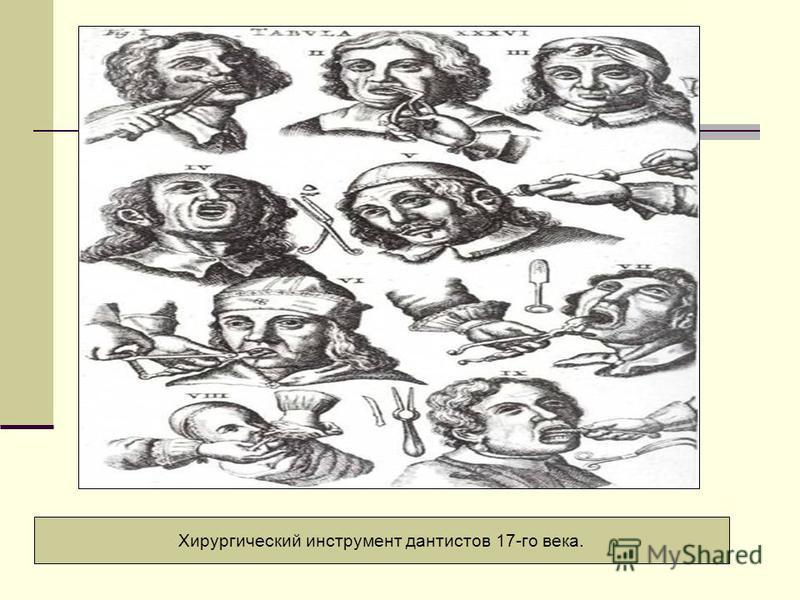 Хирургический инструмент дантистов 17-го века.