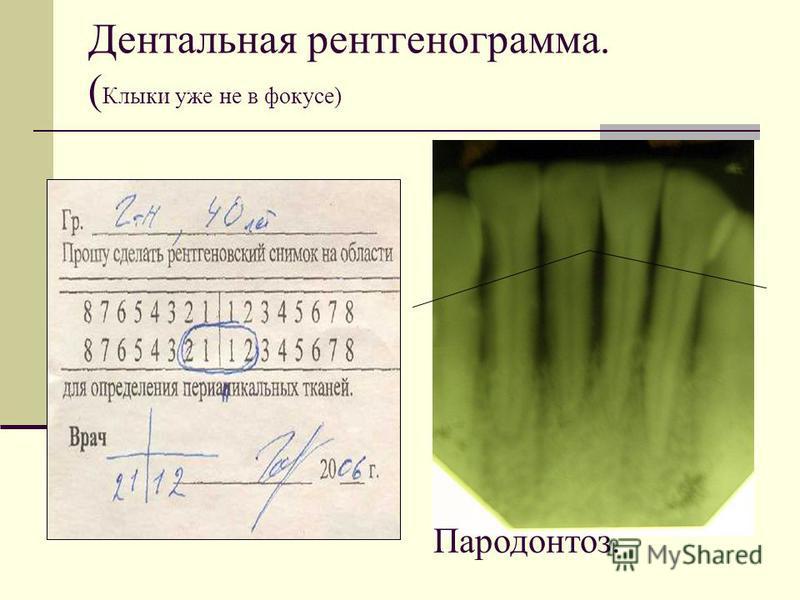 Дентальная рентгенограмма. ( Клыки уже не в фокусе) Пародонтоз.