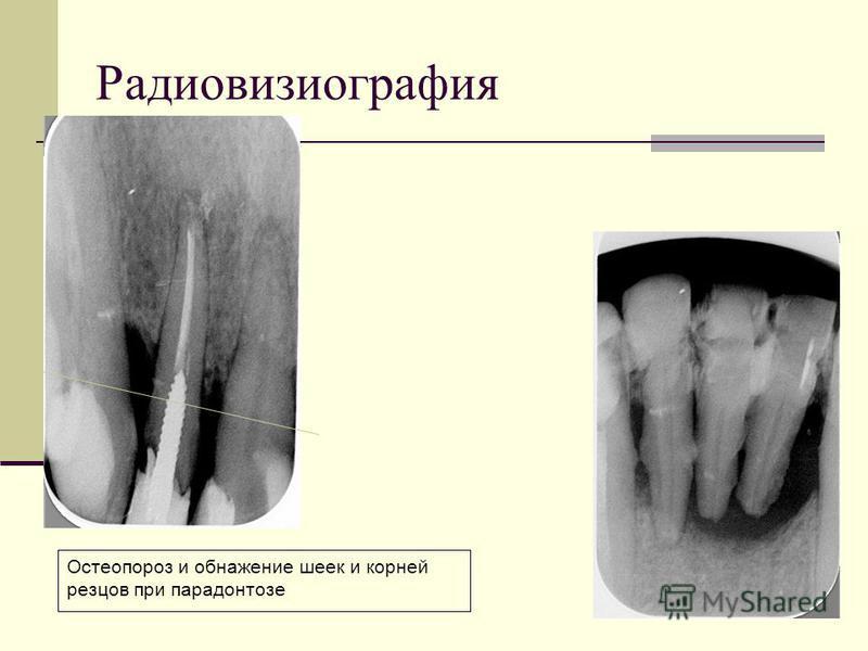 Остеопороз и обнажение шеек и корней резцов при парадонтозе