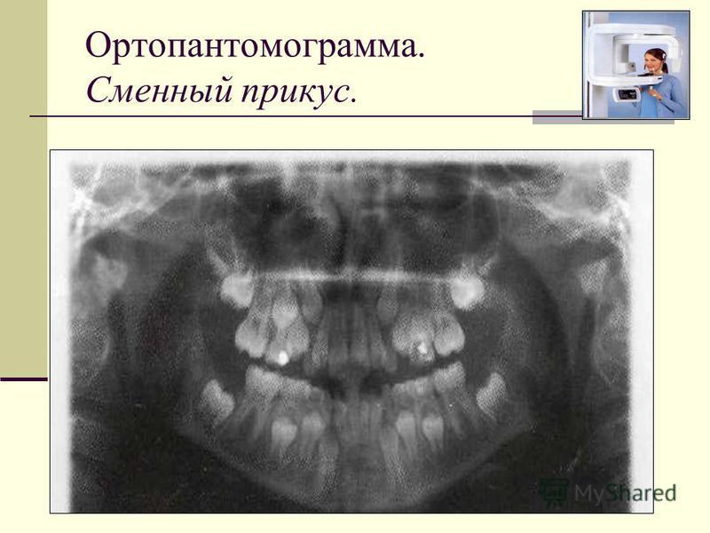 Ортопантомограмма. Сменный прикус.