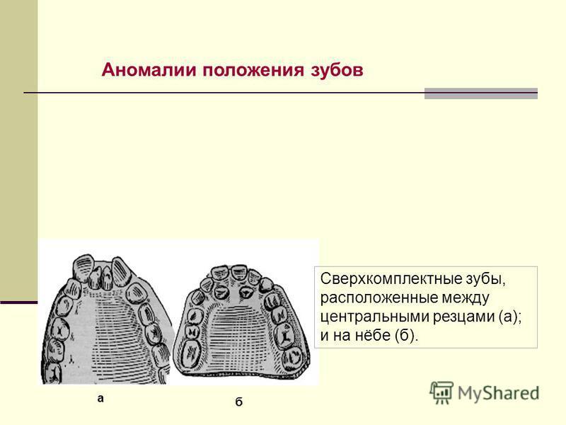 Аномалии положения зубов Сверхкомплектные зубы, расположенные между центральными резцами (а); и на нёбе (б). а б