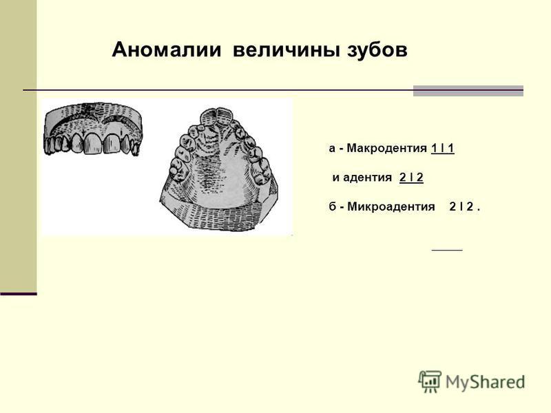Аномалии величины зубов а - Макродентия 1 І 1 и адентия 2 І 2 б - Микроадентия 2 І 2.