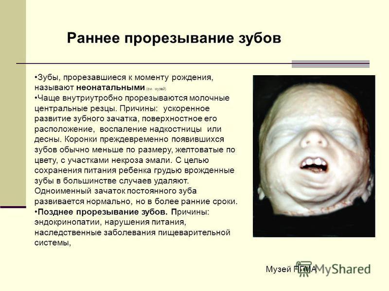 Зубы, прорезавшиеся к моменту рождения, называют неонатальными.(см. музей) Чаще внутриутробно прорезываются молочные центральные резцы. Причины: ускоренное развитие зубного зачатка, поверхностное его расположение, воспаление надкостницы или десны. Ко