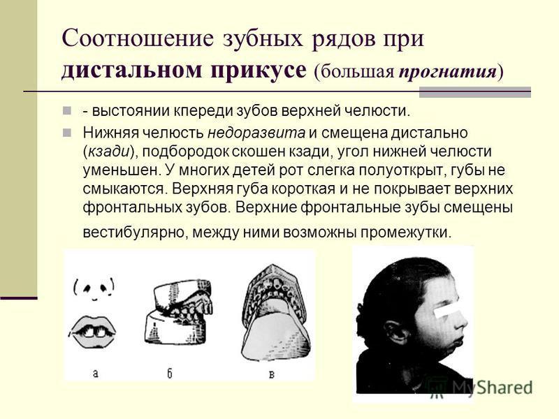 Соотношение зубных рядов при дистальном прикусе (большая прогнатия) - выстоянии кпереди зубов верхней челюсти. Нижняя челюсть недоразвита и смещена дистально (кзади), подбородок скошен кзади, угол нижней челюсти уменьшен. У многих детей рот слегка по