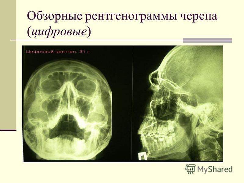 Обзорные рентгенограммы черепа (цифровые)