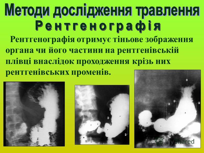 Рентгенографія отримує тіньове зображення органа чи його частини на рентгенівській плівці внаслідок проходження крізь них рентгенівських променів.