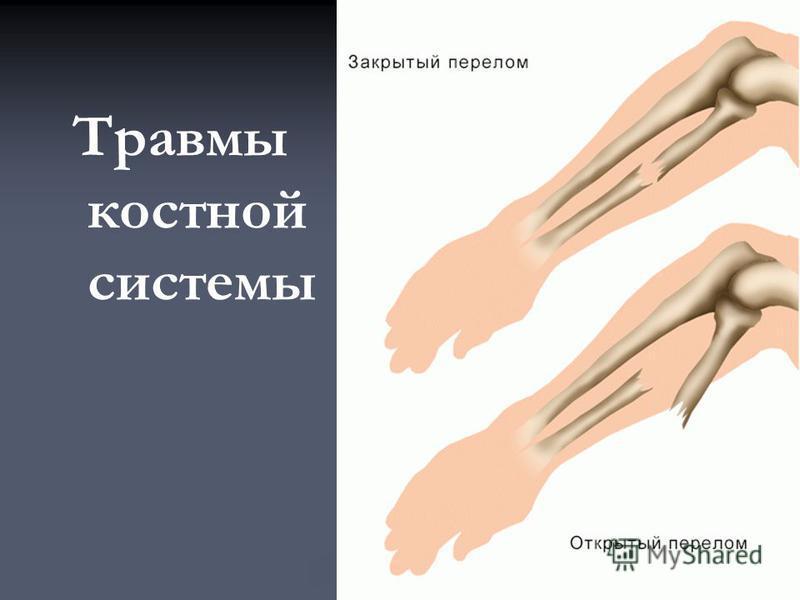 Травмы костной системы