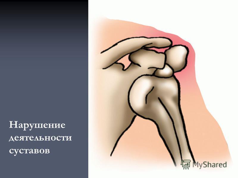 Нарушение деятельности суставов