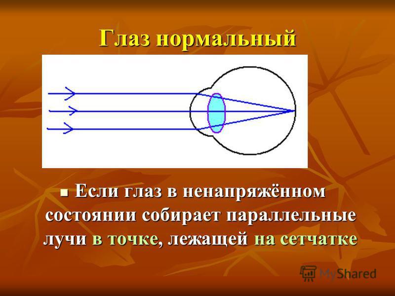 Глаз нормальный Если глаз в ненапряжённом состоянии собирает параллельные лучи в точке, лежащей на сетчатке Если глаз в ненапряжённом состоянии собирает параллельные лучи в точке, лежащей на сетчатке