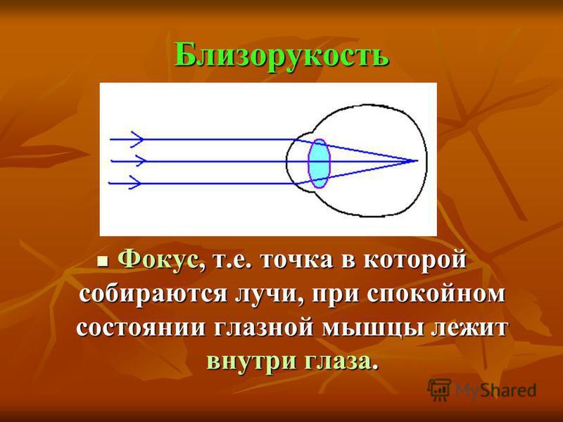 Близорукость Фокус, т.е. точка в которой собираются лучи, при спокойном состоянии глазной мышцы лежит внутри глаза. Фокус, т.е. точка в которой собираются лучи, при спокойном состоянии глазной мышцы лежит внутри глаза.