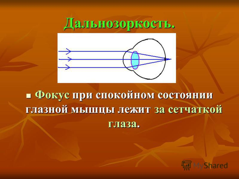 Дальнозоркость. Фокус при спокойном состоянии глазной мышцы лежит за сетчаткой глаза. Фокус при спокойном состоянии глазной мышцы лежит за сетчаткой глаза.