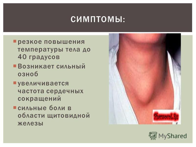 резкое повышения температуры тела до 40 градусов Возникает сильный озноб увеличивается частота сердечных сокращений сильные боли в области щитовидной железы СИМПТОМЫ: