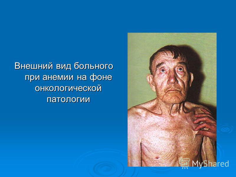 Внешний вид больного при анемии на фоне онкологической патологии