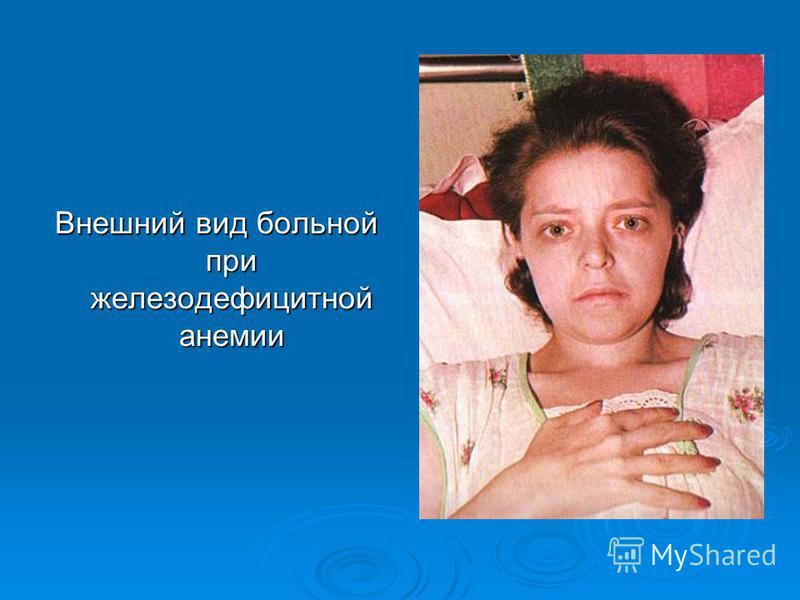 Внешний вид больной при железодефицитной анемии