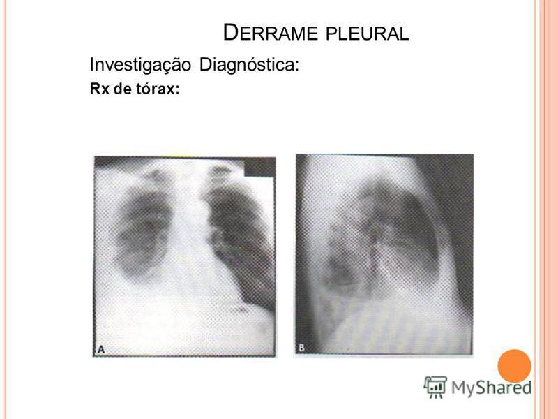 D ERRAME PLEURAL Investigação Diagnóstica: Rx de tórax: