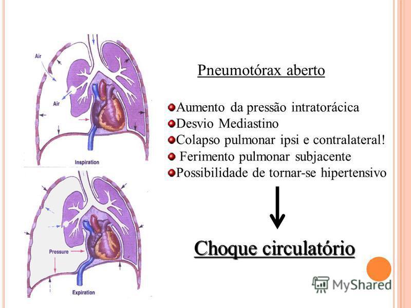 Pneumotórax aberto Aumento da pressão intratorácica Desvio Mediastino Colapso pulmonar ipsi e contralateral! Ferimento pulmonar subjacente Possibilidade de tornar-se hipertensivo Choque circulatório