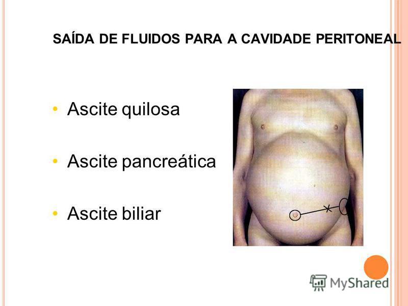SAÍDA DE FLUIDOS PARA A CAVIDADE PERITONEAL Ascite quilosa Ascite pancreática Ascite biliar