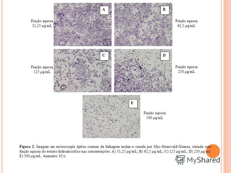 Fração aquosa 31,25 g/mL AB Fração aquosa 62,5 g/mL Fração aquosa 125 g/mL CD Fração aquosa 250 g/mL Fração aquosa 500 g/mL Figura 2. Imagem em microscopia óptica comum da linhagem melan-a corada por May-Grunwald-Giemsa, tratada com fração aquosa do
