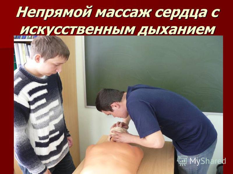 Непрямой массаж сердца с искусственным дыханием