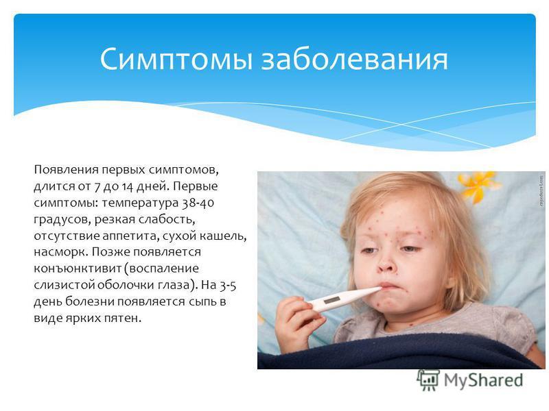 Симптомы заболевания Появления первых симптомов, длится от 7 до 14 дней. Первые симптомы: температура 38-40 градусов, резкая слабость, отсутствие аппетита, сухой кашель, насморк. Позже появляется конъюнктивит (воспаление слизистой оболочки глаза). На