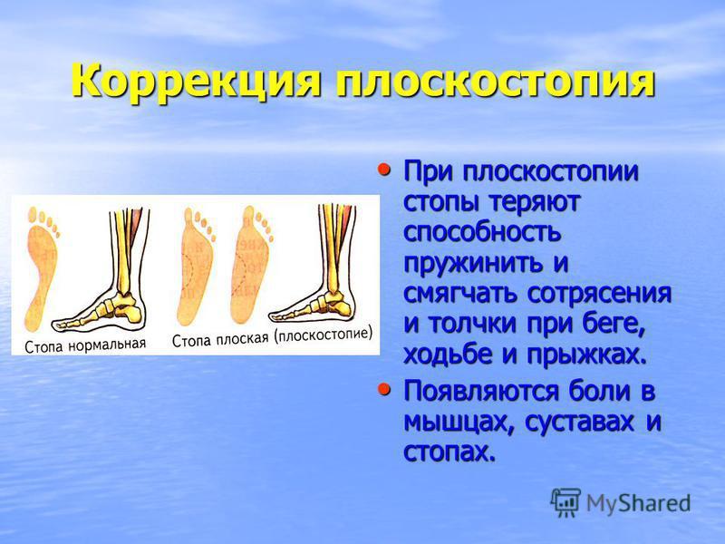 Коррекция плоскостопия При плоскостопии стопы теряют способность пружинить и смягчать сотрясения и толчки при беге, ходьбе и прыжках. При плоскостопии стопы теряют способность пружинить и смягчать сотрясения и толчки при беге, ходьбе и прыжках. Появл