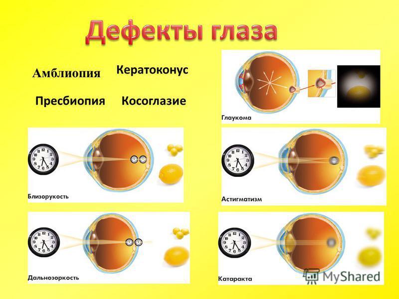 Пресбиопия Косоглазие Кератоконус Амблиопия