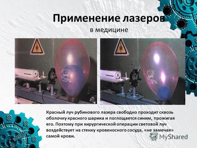 Применение лазеров в медицине Красный луч рубинового лазера свободно проходит сквозь оболочку красного шарика и поглощается синим, прожигая его. Поэтому при хирургической операции световой луч воздействует на стенку кровеносного сосуда, «не замечая»