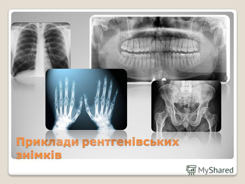 Приклади рентгенівських знімків