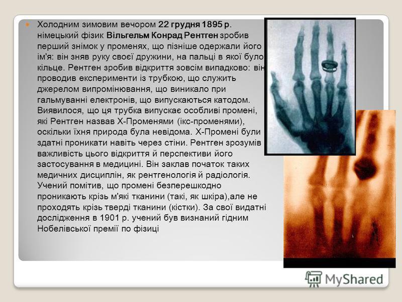 Холодним зимовим вечором 22 грудня 1895 р. німецький фізик Вільгельм Конрад Рентген зробив перший знімок у променях, що пізніше одержали його ім'я: він зняв руку своєї дружини, на пальці в якої було кільце. Рентген зробив відкриття зовсім випадково: