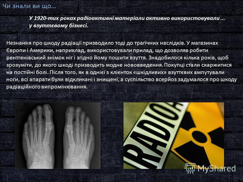 Чи знали ви що… У 1920-тих роках радіоактивні матеріали активно використовували... у взуттєвому бізнесі. Незнання про шкоду радіації призводило тоді до трагічних наслідків. У магазинах Європи і Америки, наприклад, використовували прилад, що дозволяв