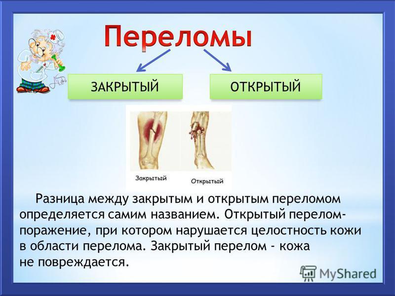 ЗАКРЫТЫЙОТКРЫТЫЙ Разница между закрытым и открытым переломом определяется самим названием. Открытый перелом- поражение, при котором нарушается целостность кожи в обласети перелома. Закрытый перелом - кожа не повреждается.
