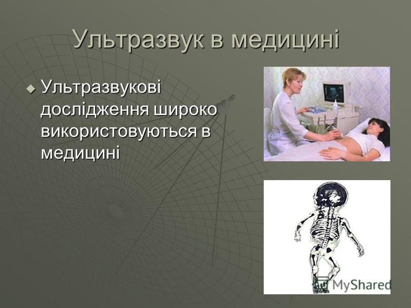 Ультразвук в медицині Ультразвукові дослідження широко використовуються в медицині Ультразвукові дослідження широко використовуються в медицині