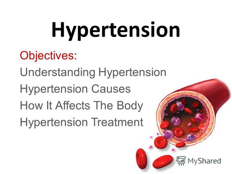 Hypertension Objectives: Understanding Hypertension Hypertension Causes How It Affects The Body Hypertension Treatment
