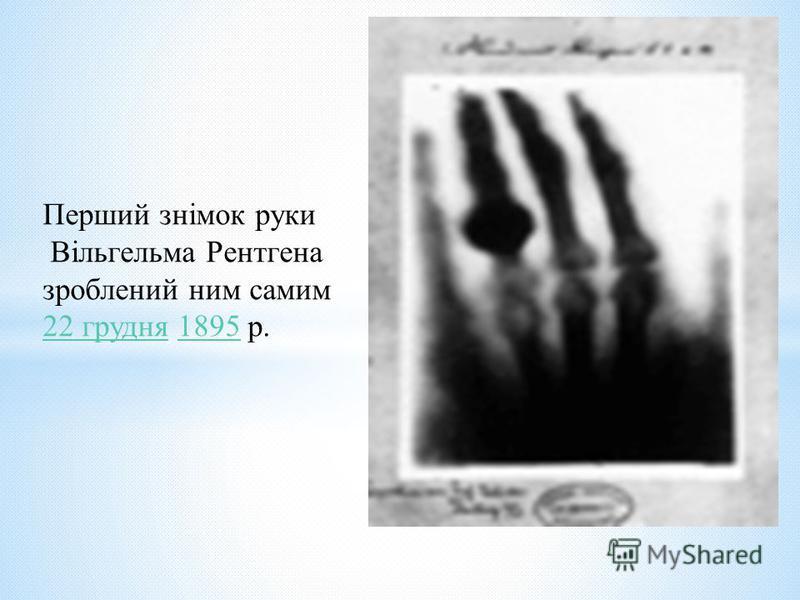Перший знімок руки Вільгельма Рентгена зроблений ним самим 22 грудня22 грудня 1895 р.1895