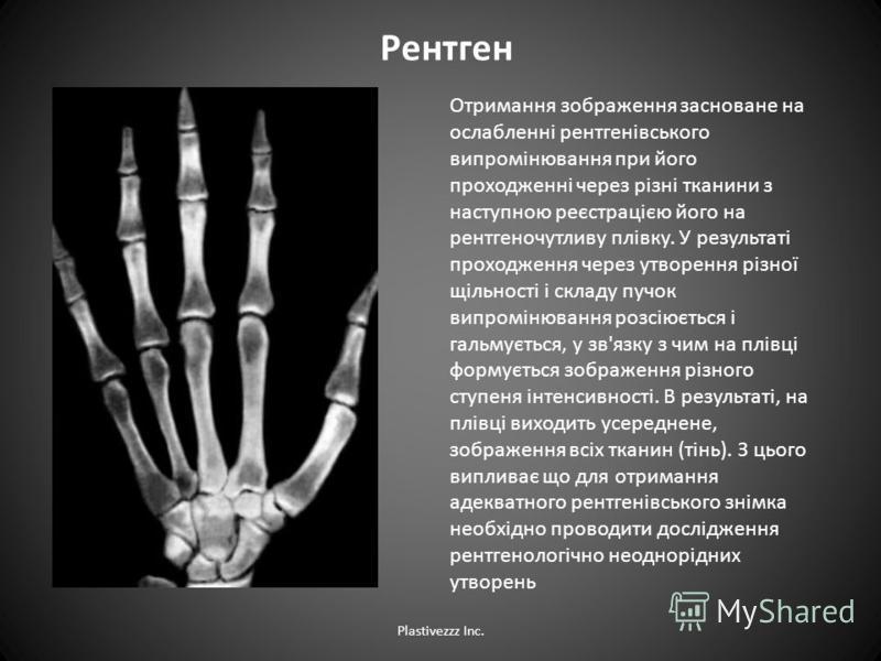 Рентген Отримання зображення засноване на ослабленні рентгенівського випромінювання при його проходженні через різні тканини з наступною реєстрацією його на рентгеночутливу плівку. У результаті проходження через утворення різної щільності і складу пу